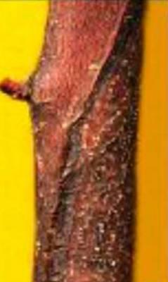 цистоспороз